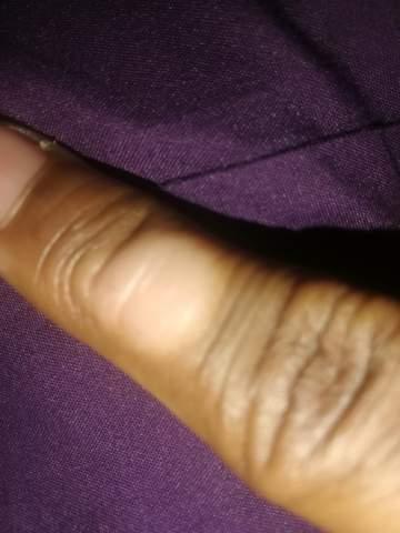 Etwas auf meinem finger?