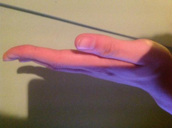 Finger - (Medizin, gesundh)
