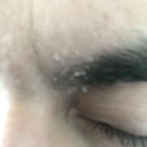 Schuppige Haut trockene Haut  - (Haare, Haut, Gesicht)