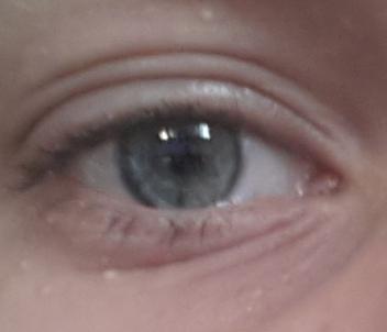 Bild - (Augenringe, extrem)