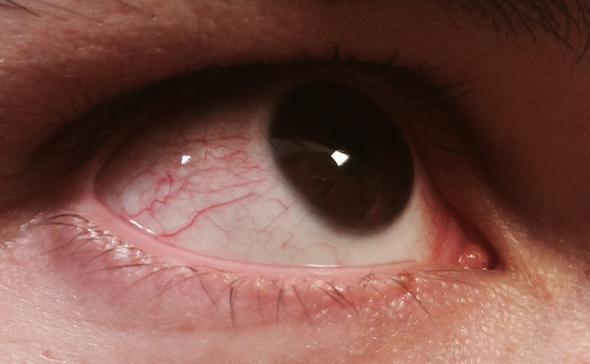 Warum um die Augen die dunklen Kreise