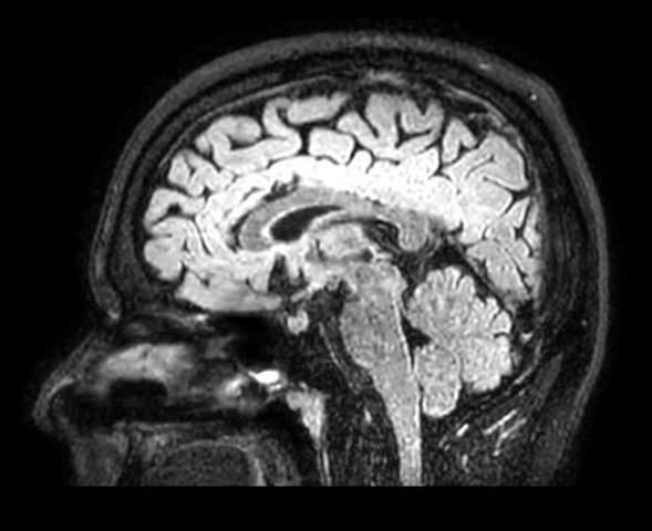 Fällt euch an diesen Bildern eines Schädel-MRTs irgendetwas auf, oder ist alles ganz normal?