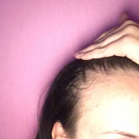 Fallen bald meine ganzen Haare aus?