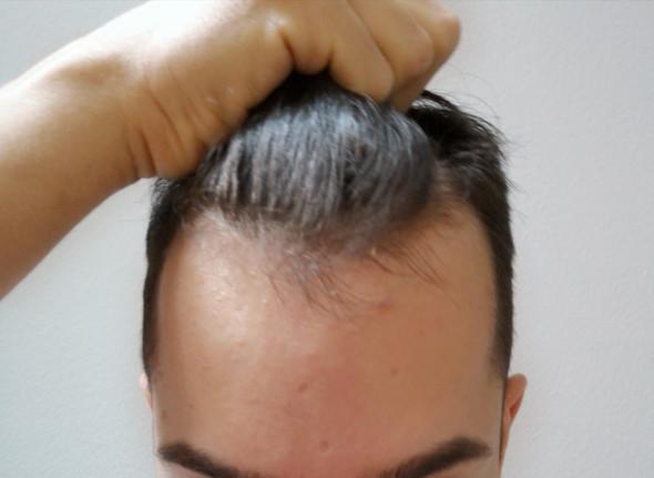 Tun geheimratsecken was Medizin: Haarausfall