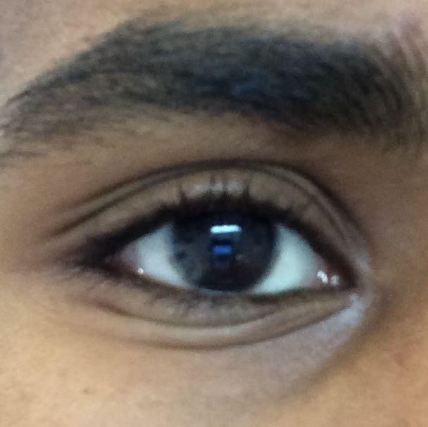 Wie die Wassergeschwulst vom Auge und der Person nach dem Stoß abzunehmen