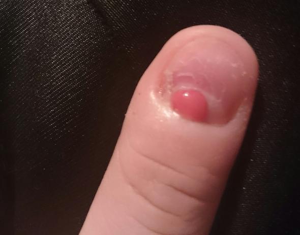 Fehlendes Stück im Nagelentzündet. Wie behandeln