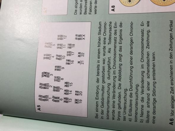 Fehler bei Chromosomensatz? (Biologie, Bio, DNA)