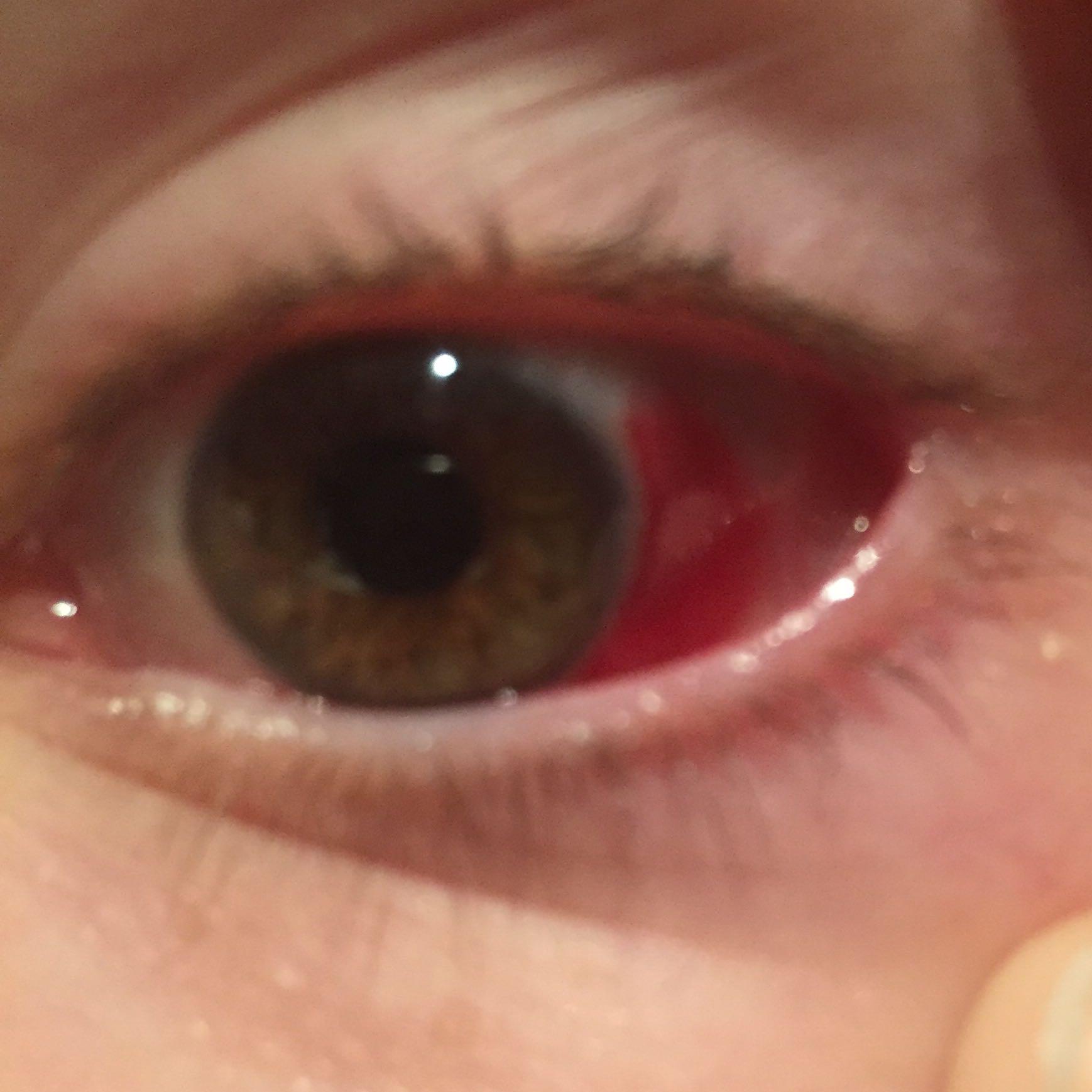 Katze Einblutung Auge