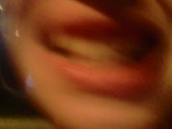 das ist jetzt ein bild aus dem internet aber so ungefähr sehen ihre Zähne aus - (Zahnspange, Feste, Lose)