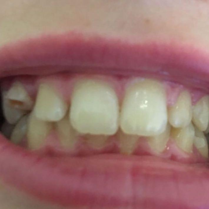 Feste Zahnspange bei Überbiss und verschobenen Eckzahn?