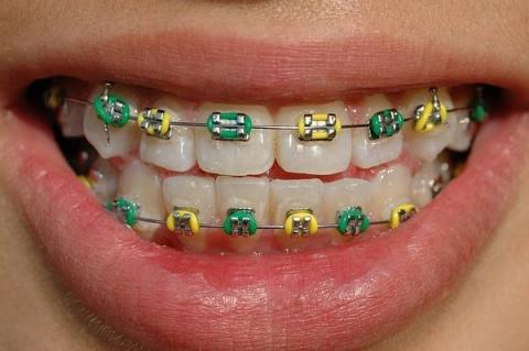 bunt - (Zahnarzt, Zahnspange)