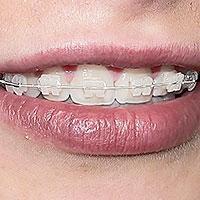 weiß - (Zahnarzt, Zahnspange)