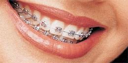 silber - (Zahnarzt, Zahnspange)