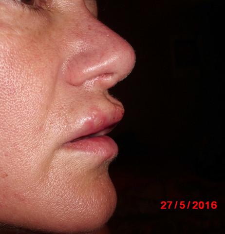 Fieberblase 1 - (Hautarzt, Herpes, fieberblase)