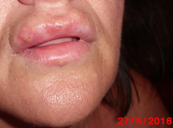 Fieberblase 2 - (Hautarzt, Herpes, fieberblase)