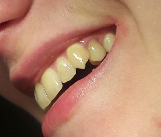 zahnkrone  - (Zähne, Zahnkrone)