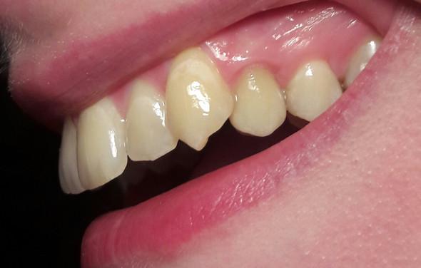 bild 2 zahnkrone - (Zähne, Zahnkrone)