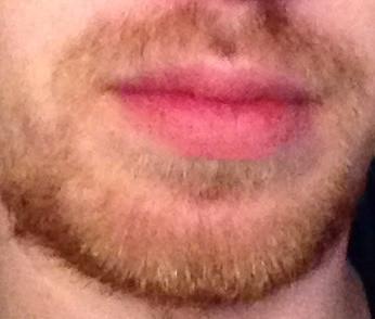 Bart wenig bartwuchs