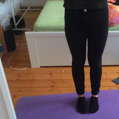X-Beine? - (Beine)