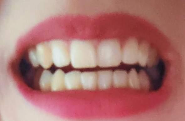 Findet ihr, dass ich eine Zahnspange bräuchte?