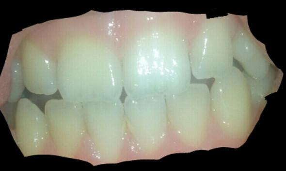 - (Zähne, Hygiene, gesund)