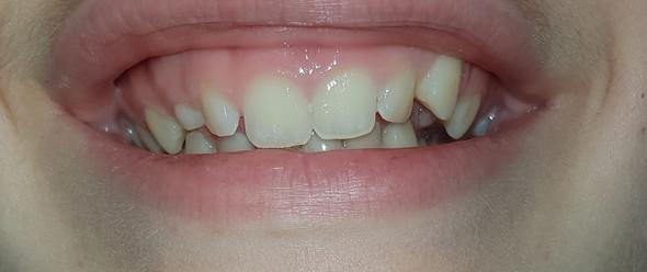 Zähne - (Gesundheit, Zähne)