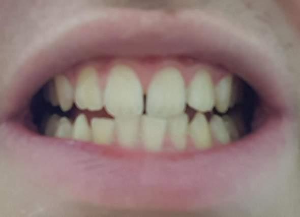 Findet ihr diese Zähne stark schlimm?