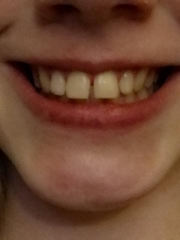 Findet ihr dieses Lächeln hässlich?