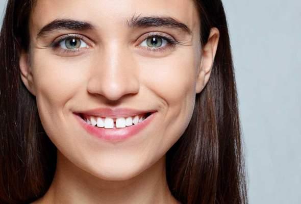 Findet ihr eine Zahnlücke unschön?
