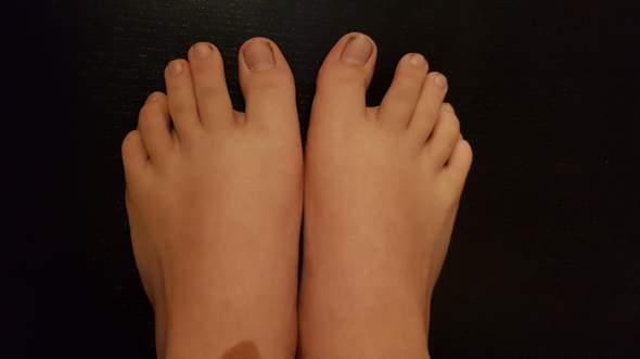 Findet ihr ich habe hässliche Füße? (hässlich)