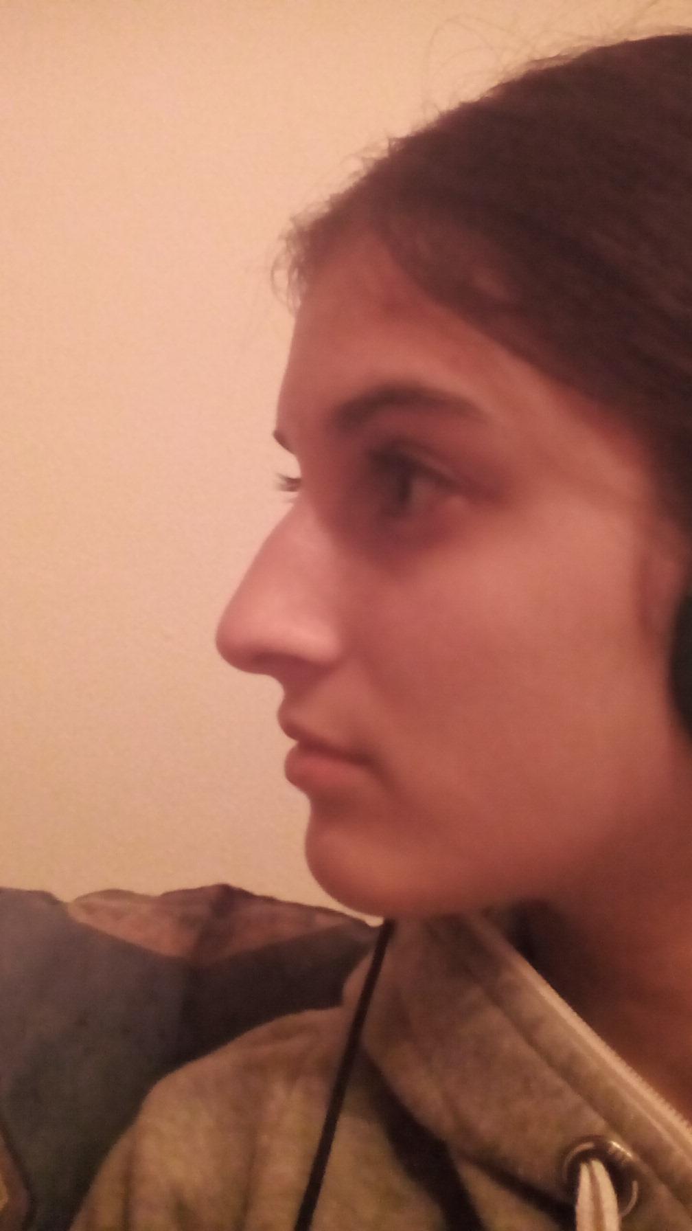 Findet ihr meine Nase OK? (Schönheit)