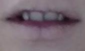 Zähne 2 - (Foto, Gesundheit und Medizin, Zähne)