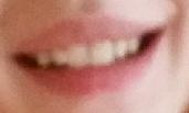 Zähne 3 - (Foto, Gesundheit und Medizin, Zähne)