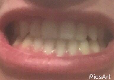 Meine Zähne... - (Gesundheit und Medizin, Zähne, Zahnspange)