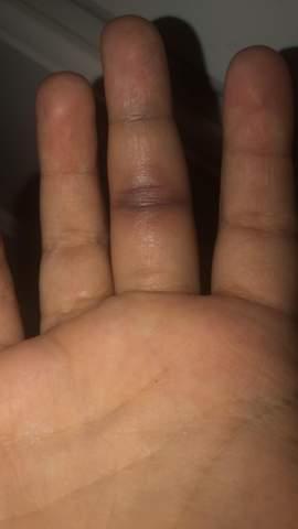 Was tun bei kapselriss im finger