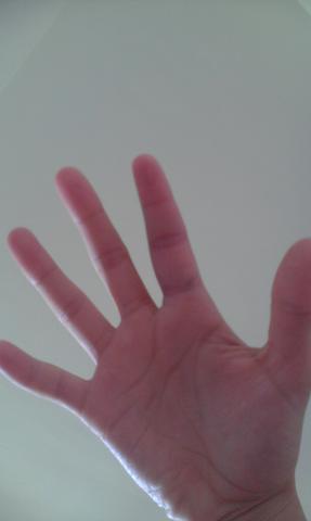 der geschwollene Finger - (Gesundheit, Sport, Verletzung)