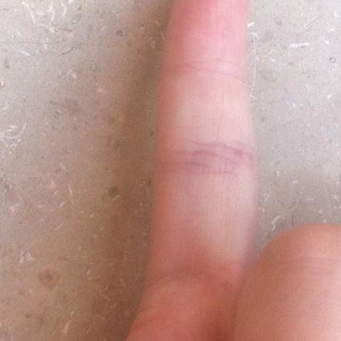 Ader im finger geplatzt ursache