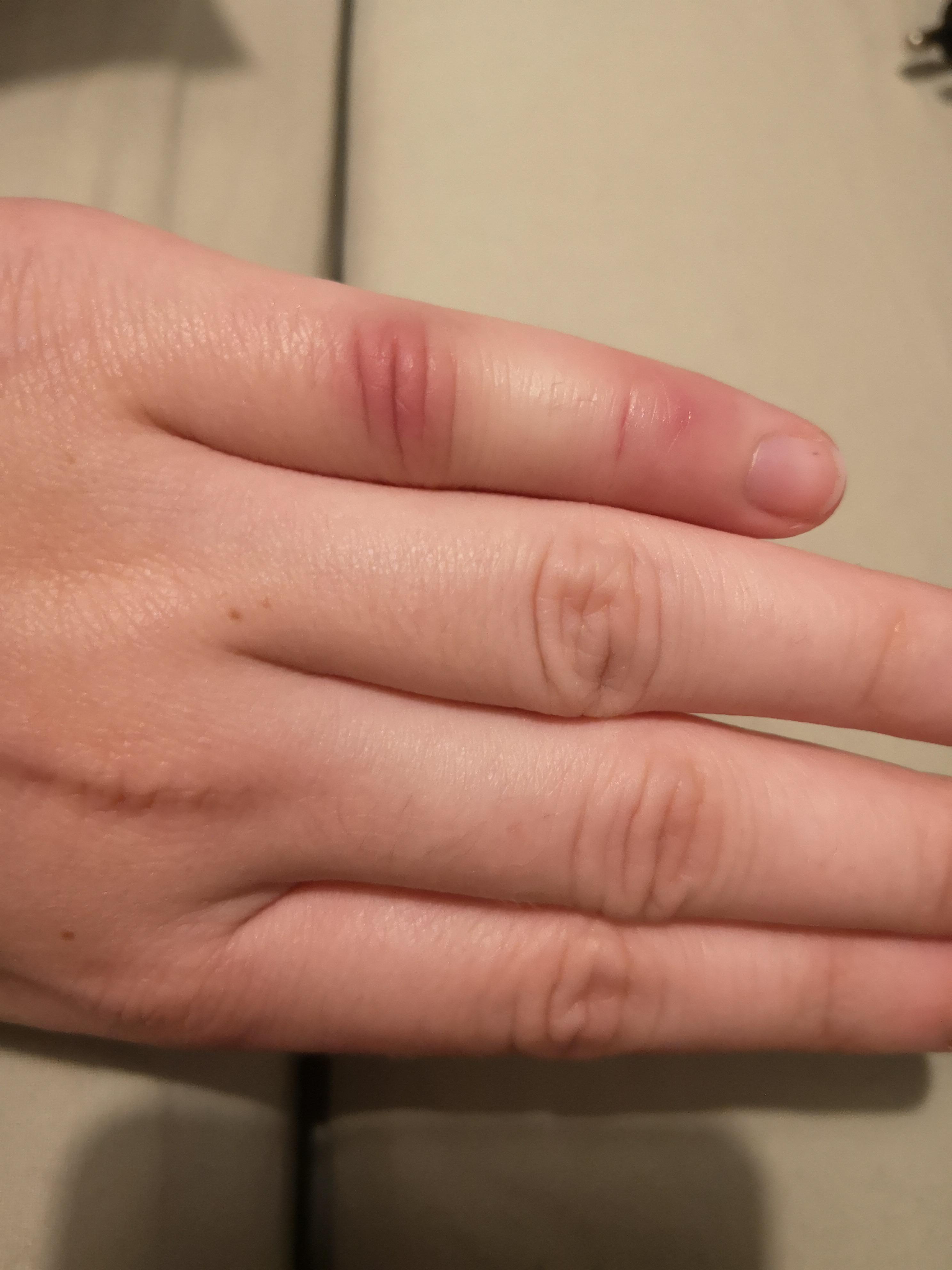 prellung finger