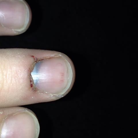 Mittlerer Finger  - (Verletzung, Finger, Fingernägel)