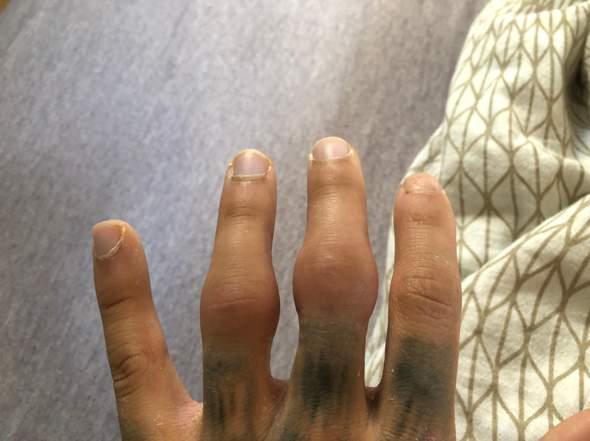 Finger sehr stark dick nach Bruch?