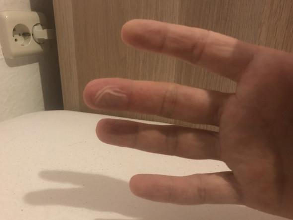 finger verbrannt auf der herdplatte verbrennungsgrad. Black Bedroom Furniture Sets. Home Design Ideas
