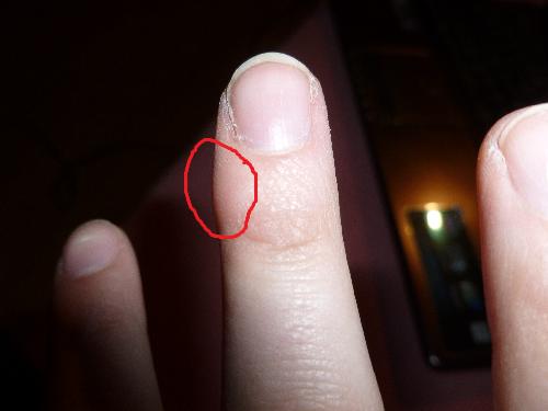 man erkennts irgendwie nicht :x - (Sport, Verletzung, Finger)