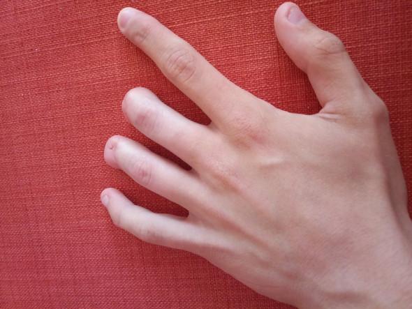 Fingeramputation wie viel Prozent?