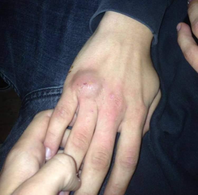 Übungen kapselriss finger Physiotherapie bei