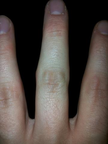 Fingerknöchel Bild 1  - (Winter, Allergie, Schwellung)