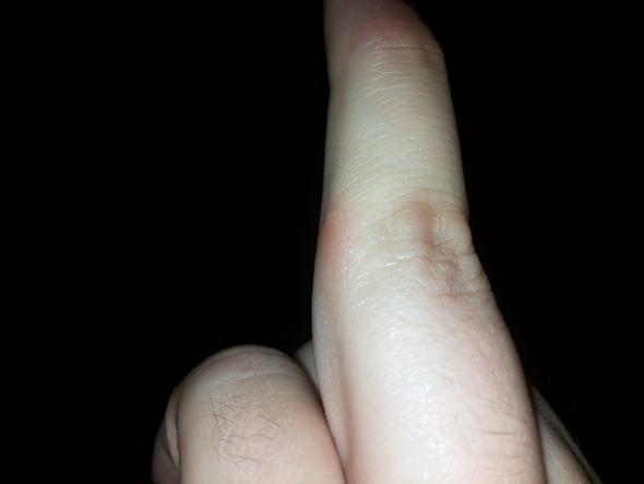 Fingerknöchel Bild 2 - (Winter, Allergie, Schwellung)