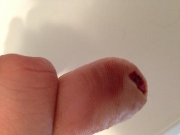 Wie lange krank fingerkuppe abgeschnitten Fingerkuppe ab