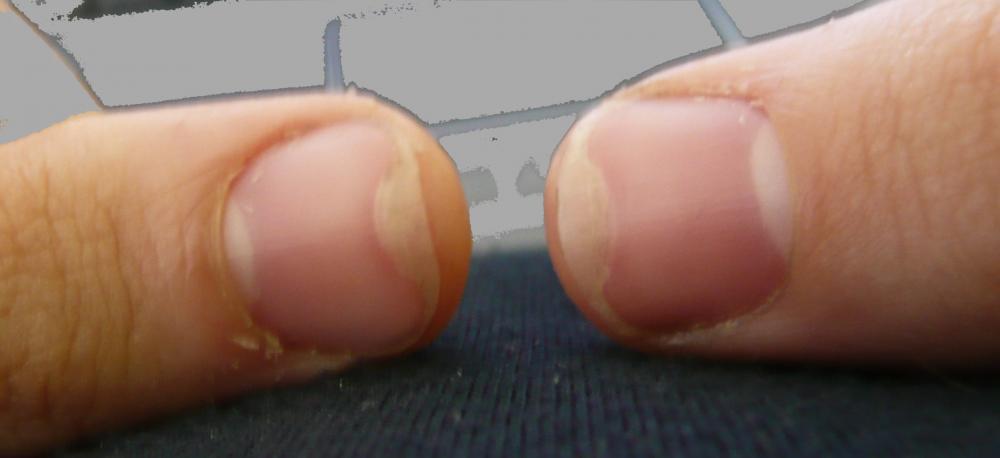 Fingernagel Haut