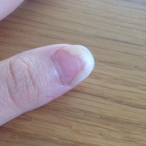 Daumen - (Nägel, Fingernägel, nagelbett)