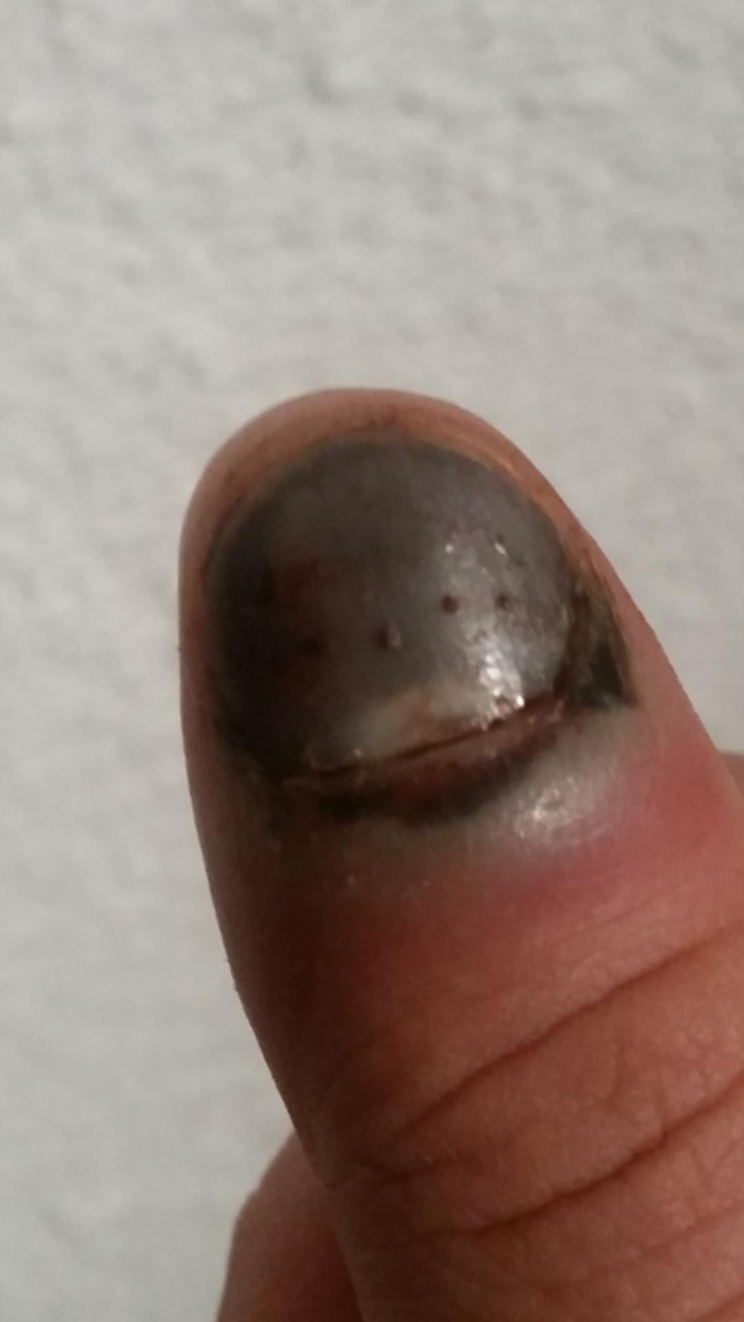 Fingernagel Geklemmt Vor 3 Wochen  Wu00e4chst Kein Nagel Mehr (Auto Arzt Heilung)